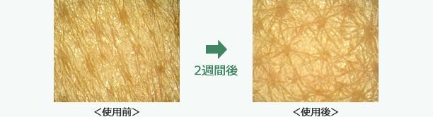 肌のキメ状態のイメージ画像