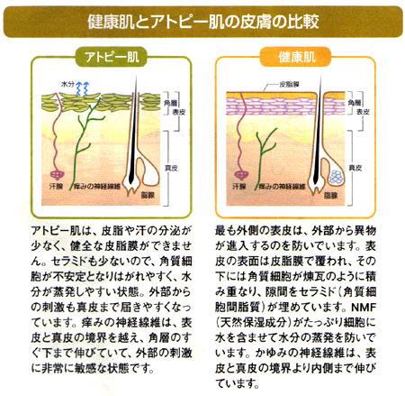 健康肌とアトピー肌の皮膚の比較