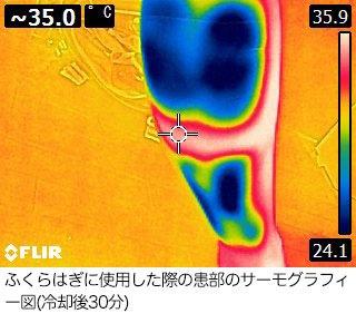 アイシングサポーター使用後のサーモグラフィー画像