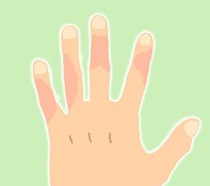 しもやけイラスト「手」