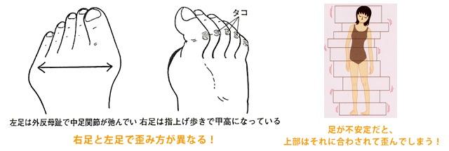 顔面の左右差の原因