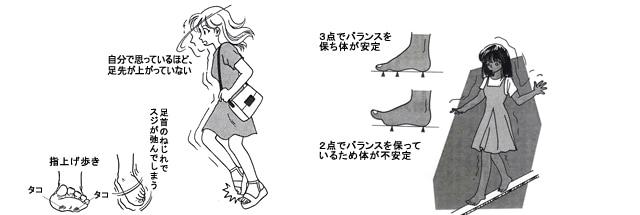 よくつまずく・転びやすい・歩き方がぎこちない