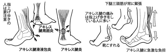 アキレス腱の痛みの原因