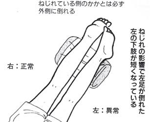 ねじれの影響で左足が倒れた 左の下肢が短くなっている