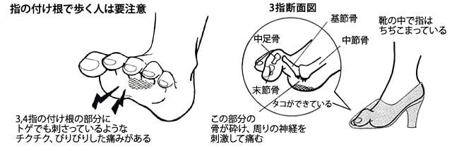 足裏の付け根のチクチクした痛みの状態