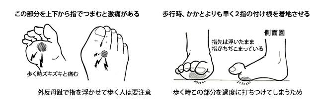 第2指の付け根の痛みの状態