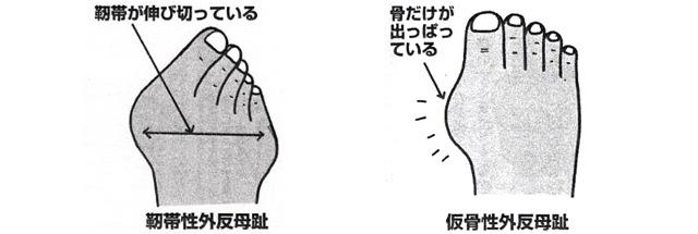 外反母趾(親指の付け根)の痛みの状態