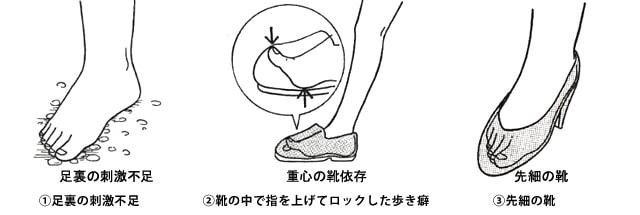 外反母趾(親指の付け根)の痛みの原因