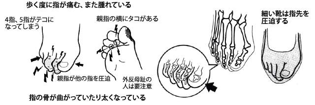 足指の変形や痛み
