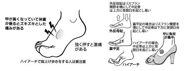 脚の甲の痛み