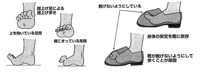 指上げ足(浮き指)