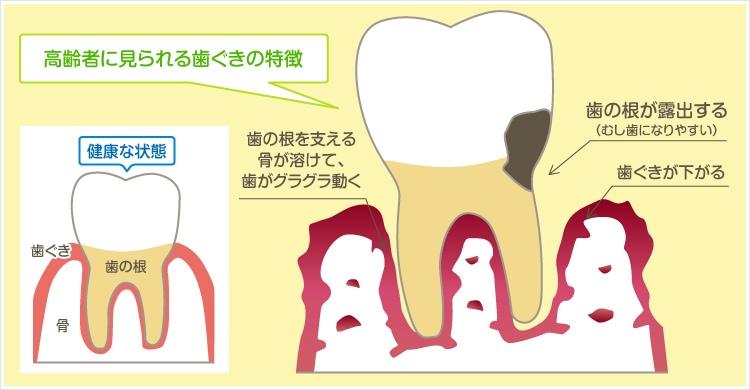 高齢者に見られる歯ぐきの特徴