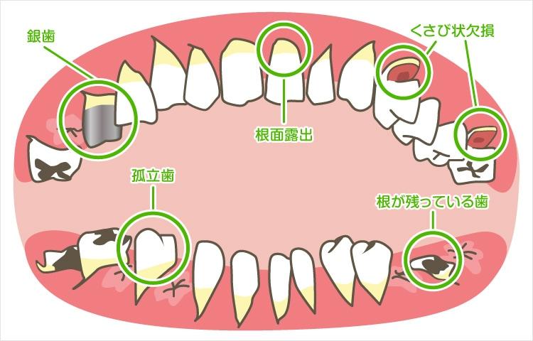 高齢者に見られる歯の特徴
