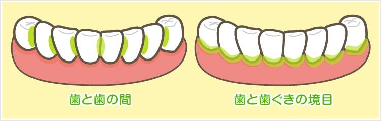歯と歯の間・歯と歯ぐきの境目