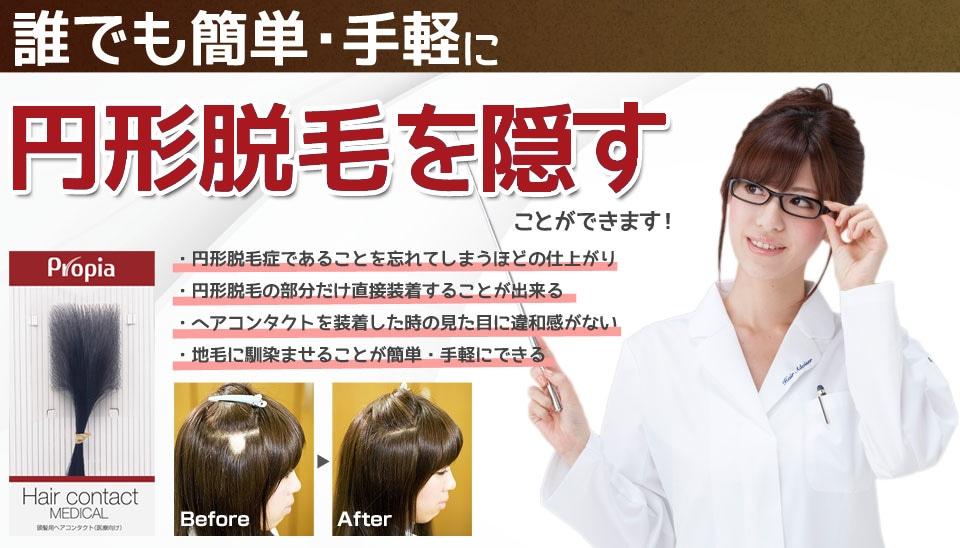 円形脱毛を隠す部分かつら「ヘアコンタクトメディカル」