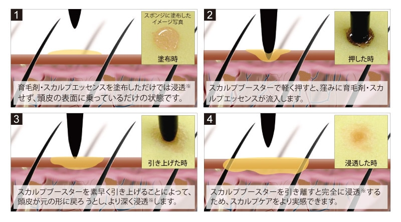 モンゴ流スカルプブースターの凸部分が頭皮に窪みを作り、育毛剤・エッセンスの浸透を後押しします。