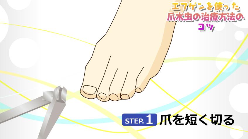 爪水虫 治療法