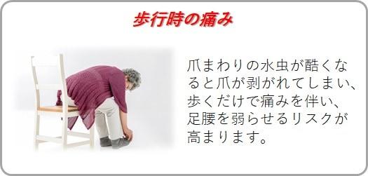 歩行時の痛みのリスク