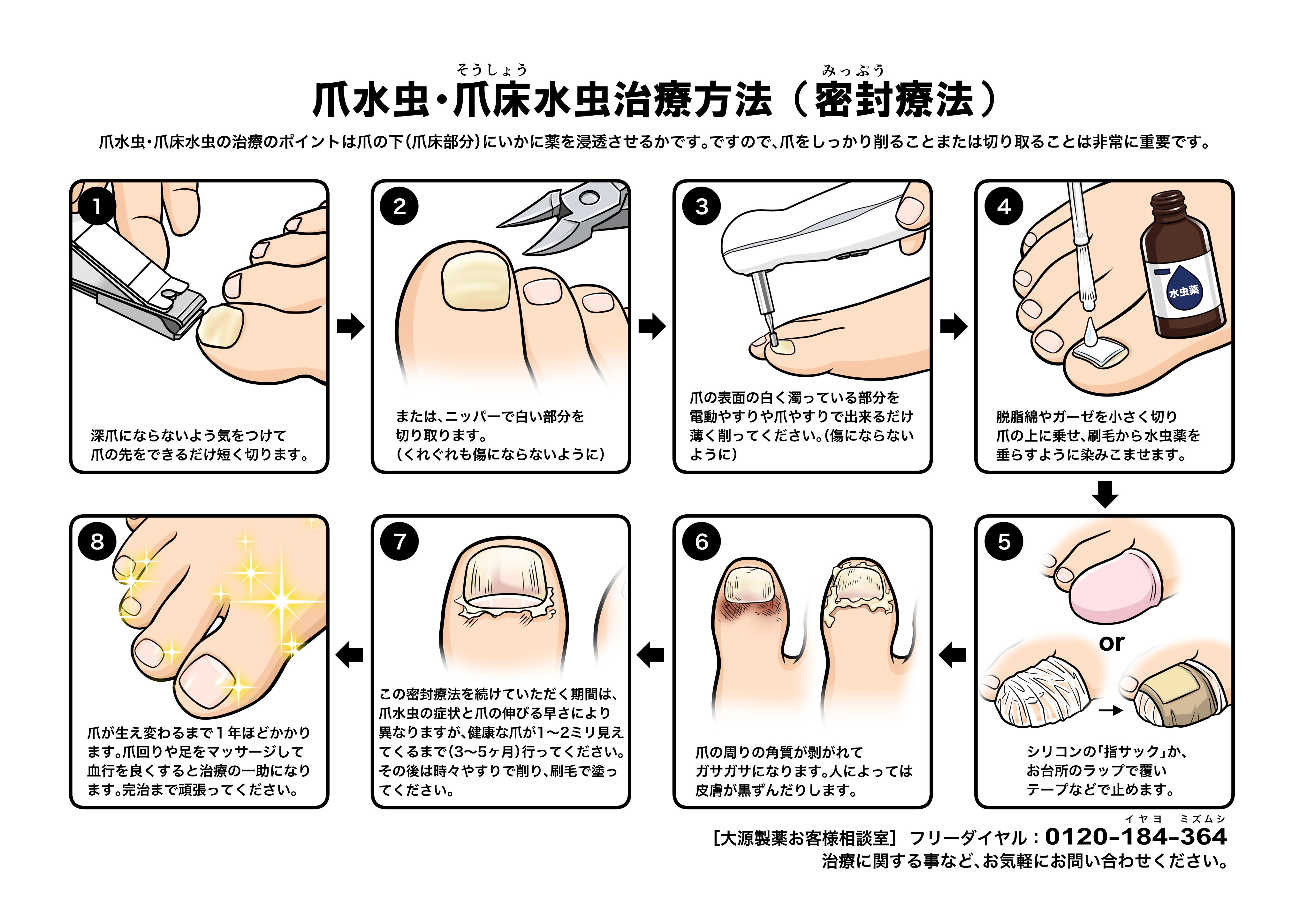 爪床水虫 治療方法