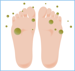 白癬菌の感染