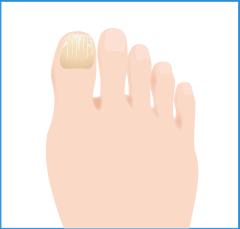 爪白癬(爪水虫)