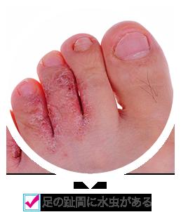 足の趾間に水虫がある