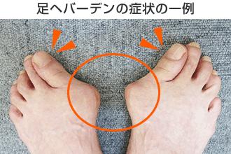 足ヘバーデンの症状の一例