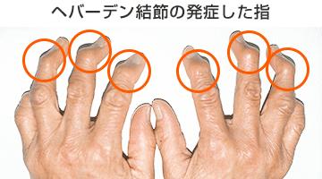 ヘバーデン結節の発症した指