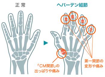正常な手とヘバーデン結節の手の図解