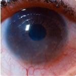 角膜血管新生