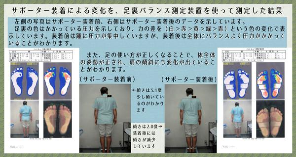 サポーター装着による変化を、足裏バランス測定装置を使って測定した結果