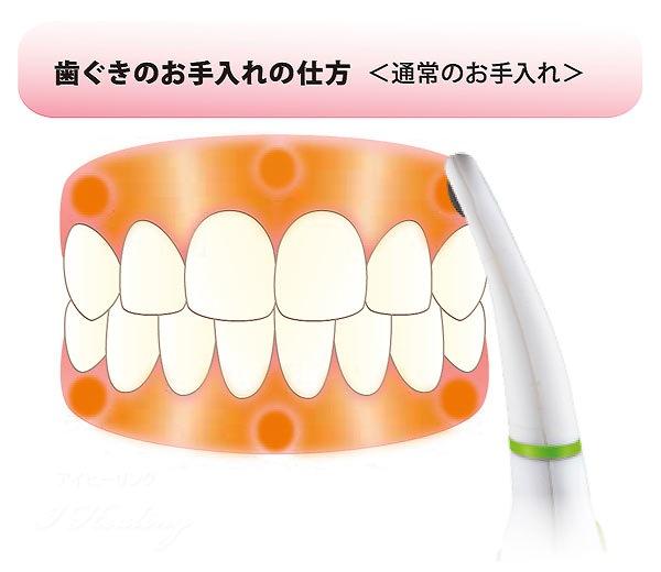 歯茎のお手入れ