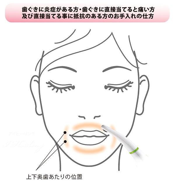 歯茎炎症の方