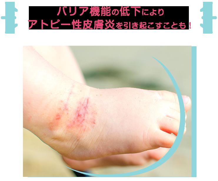 バリア機能の低下によりアトピー性皮膚炎を引き起こすことも!