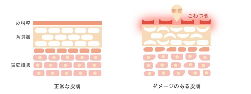 正常な皮膚と脂漏性皮膚炎患者の皮膚