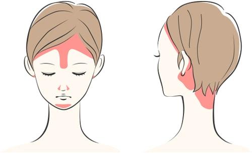 脂漏性皮膚炎の症状が出やすい箇所