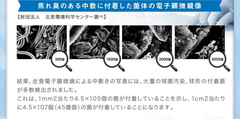 蒸れ臭のある中敷に付着した菌体の電子顕微鏡像