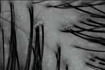 頭皮の写真A