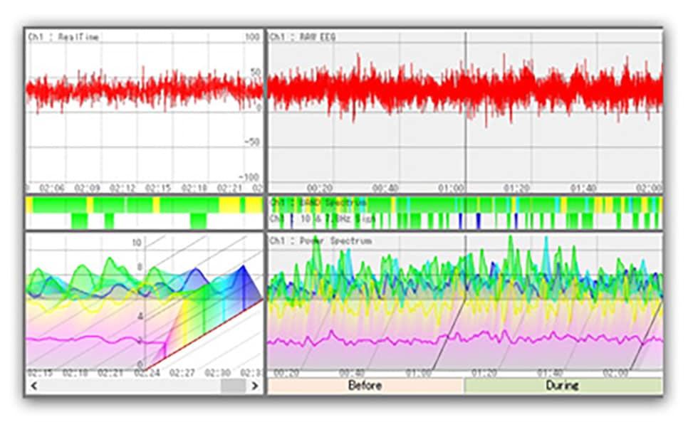 脳波の出現状況が時系列で表示!