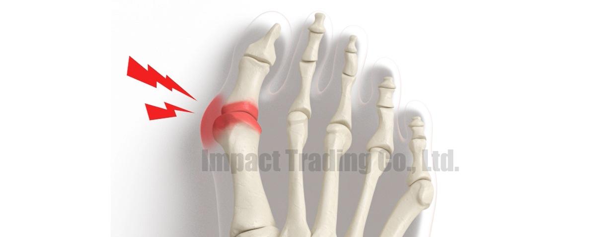 親指の付け根の痛み