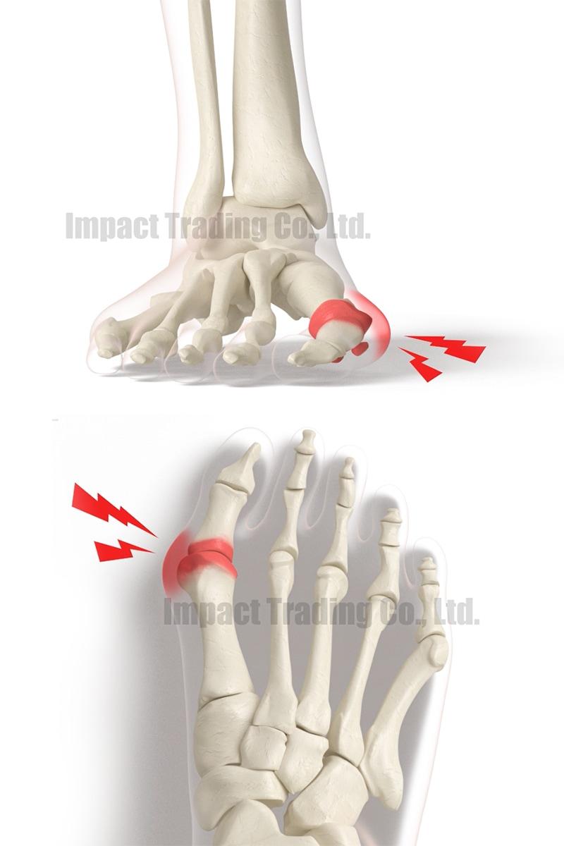 親指の付け根に炎症
