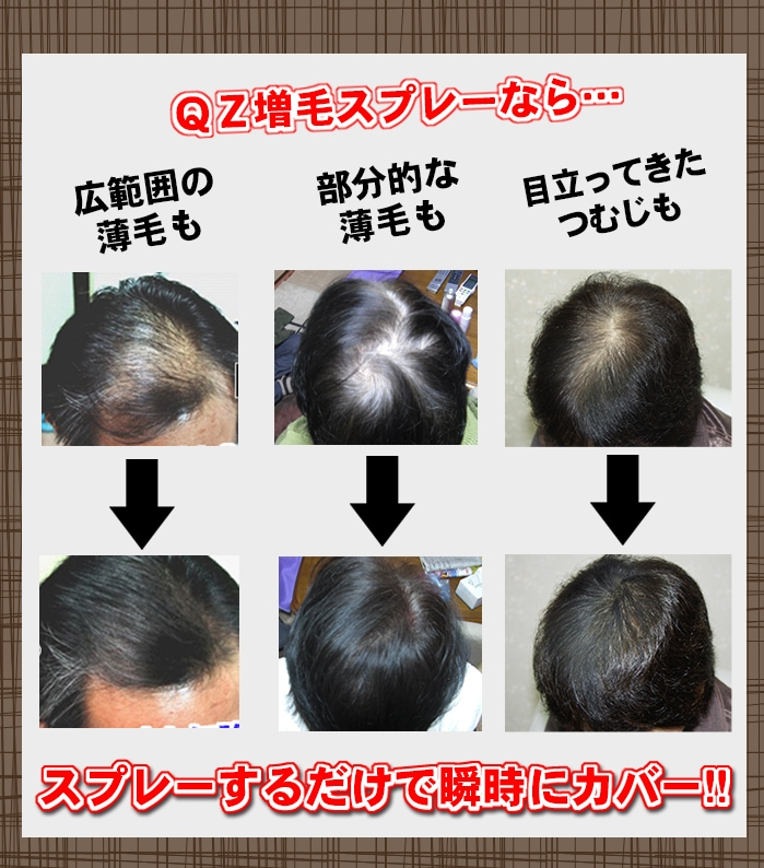 増毛スプレーQZは薄毛もつむじはげも瞬時にカバー