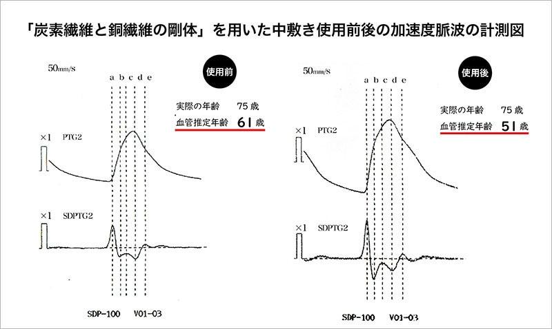 体内静電気除去の果測定数値