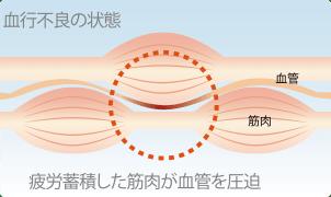 疲労蓄積した筋肉が血管を圧迫している図
