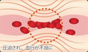 圧迫された筋肉により血行が不良になる図
