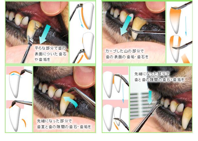 無麻酔の歯石取り